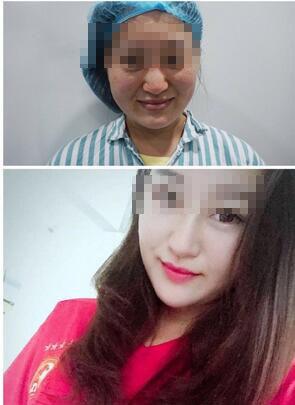 分享广州人民医院齐云香假体隆鼻真实案例 塑造高挺立体美鼻
