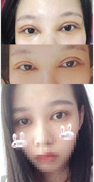 分享武汉爱思特美容医院徐院长眼部综合手术真实案例