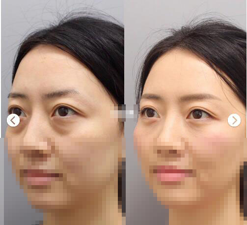 祛眼袋根据不同类型眼袋用不同的方法解决