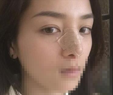 鼻综合整形手术很nice的一次手术分享