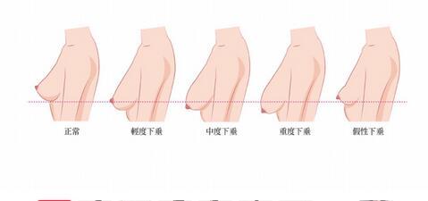 乳房出现下垂状况
