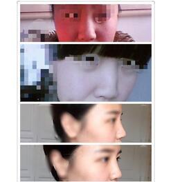 分享杭州整形医院L形单纯隆鼻案例 塑造高挺立体美鼻