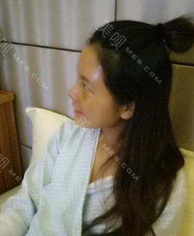 【整形韩流】南京韩辰整形蔡光浩的面部精雕术
