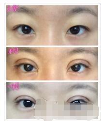 第四军医大学唐都医院刘纲医生做的全切双眼皮+去皮去脂 只花3300