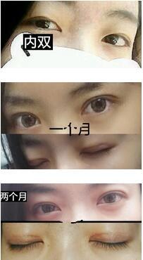 长沙伊美刘医生全切双眼皮真实案例分享 效果很不错