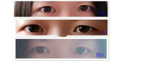 分享重庆医科大学附属第一医院全切双眼皮案例 美丽的大眼睛