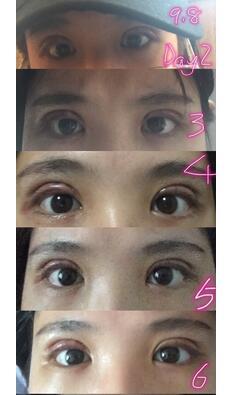 分享苏州美贝尔医院李院长全切双眼皮真实案例 效果很不错