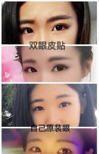 郑州美莱周蔚医生做的全切双眼皮+内眼?#21069;?#20363;
