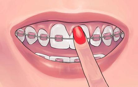 干货|牙齿矫正必须要了解的这些事