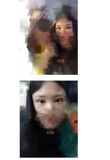 分享北京医院钱文江做全切双眼皮真实案例