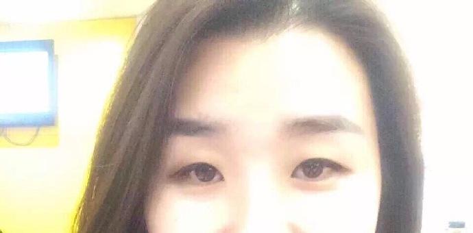 北京整形外科赵红艺医生做的全切双眼皮+内