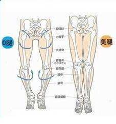 攻略:O型腿矫正的方法