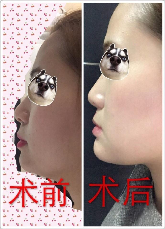 南昌大学第二附属医院易阳艳医生做的假体隆下巴
