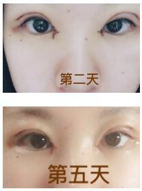 苏北人民医院全切双眼皮+内眼角案例