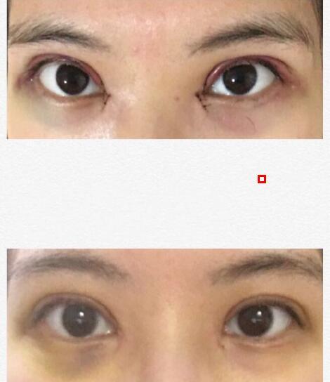 分享福建医科大学附属第一医院王彪医生做的全切双眼皮+内眼角