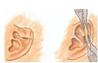 隐耳整形能改善耳部哪些问题?