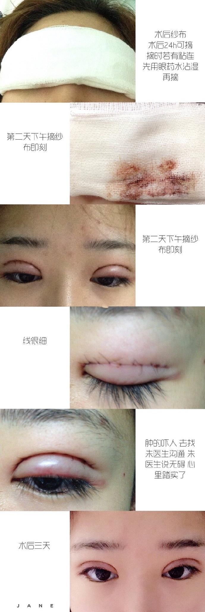 上海九院朱海男医生做的全切双眼皮+去脂案例 效果杠杠的哈