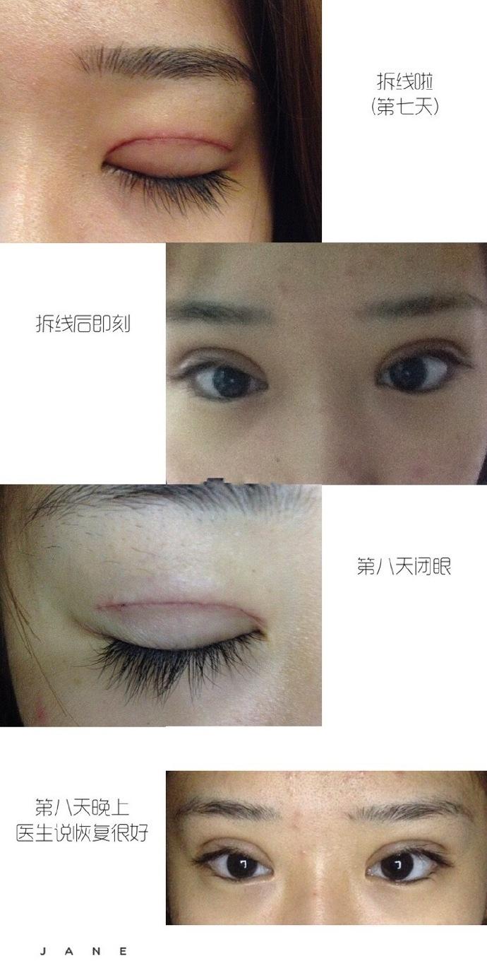 上海九院朱海男医生做的全切双眼皮+去脂案例