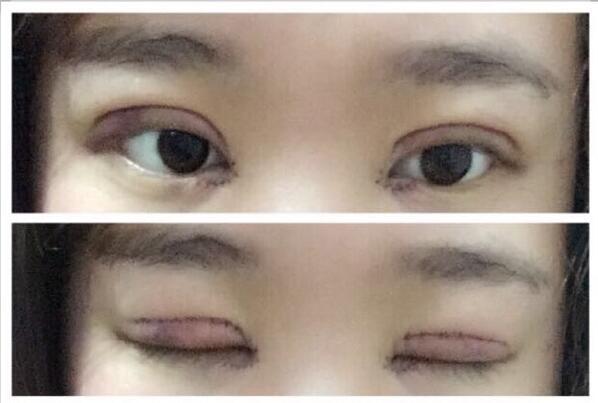 分享一下我去洛阳华美找宋俊岭医生做的全切双眼皮+内眼角案例