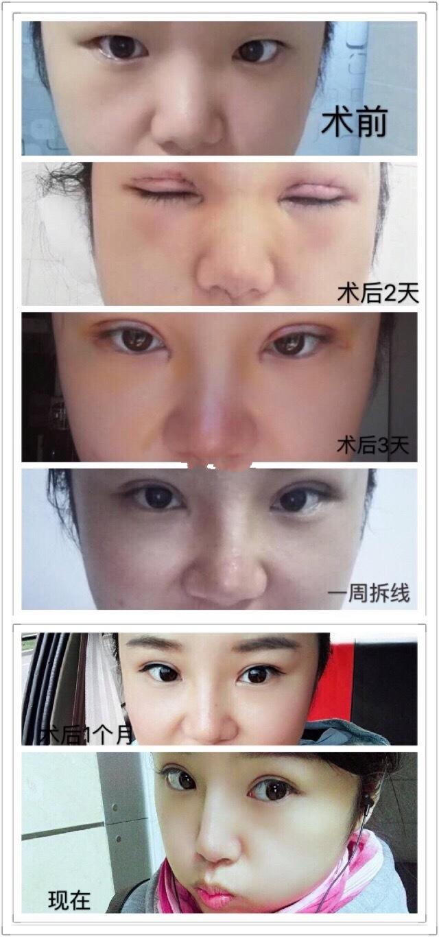 天津伊美尔杨文国医生做的全切双眼皮+隆鼻 我也来分享一下