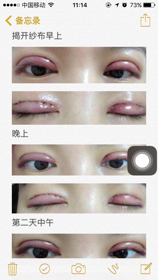 杭州117医院陆新医生做的全切双眼皮 效果就是这样的