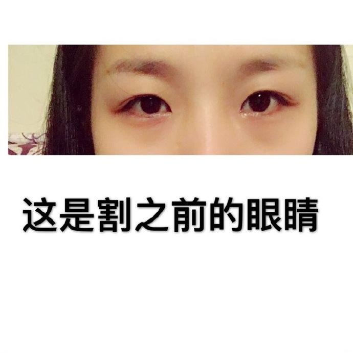 四川大学华西医院眼科郭祥文医生做的全切双眼皮+内眼角案例分享