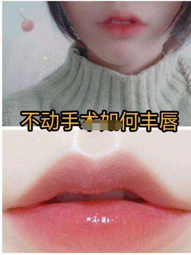 不需动手术如何可以丰唇呢?