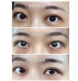 上海九院周一雄全切双眼皮手术 塑造美丽的大眼睛