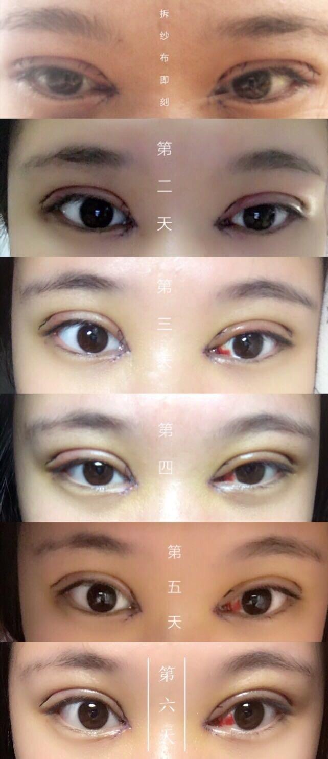 上海九院周一雄医生做的全切双眼皮+内眼角 手术价格7500左右