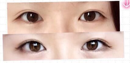 西安灵韵天鹅徐楠楠医生做的全切双眼皮+外眼角