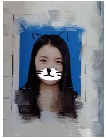 分享中南大学湘雅医院龙剑虹全切双眼皮+内眼角案例 效果自然