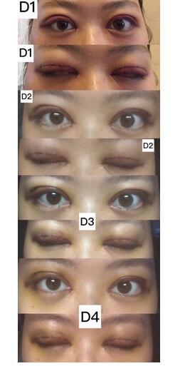 分享武汉韩辰付毅全切双眼皮+内眼角真实案例 效果杠杠的