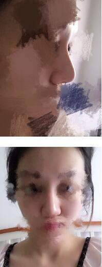 昆明都市俪人金海坤医生做的鼻综合案例 发图给大家看看了