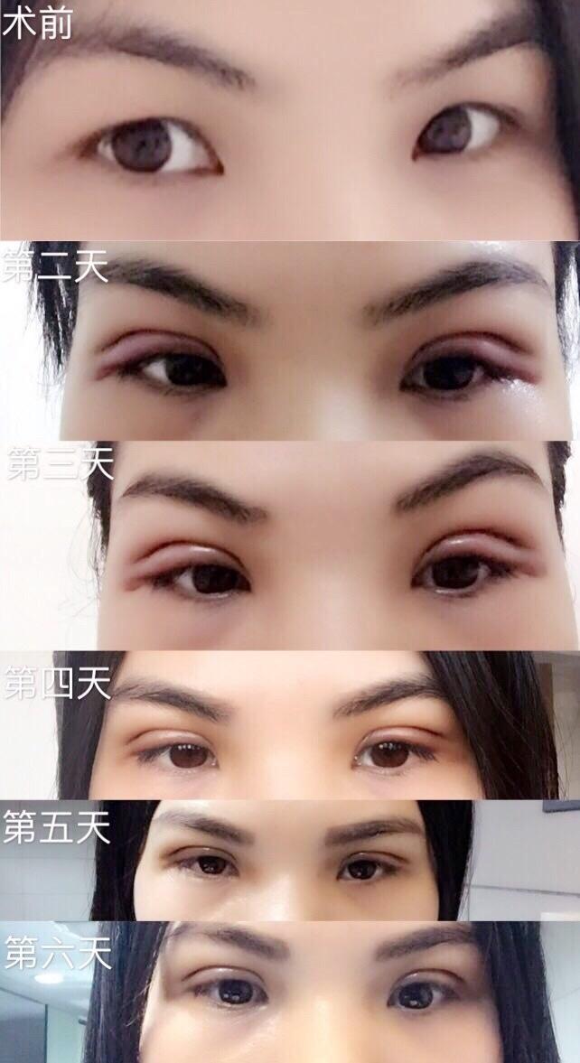 广州美莱田跃平医生做的全切双眼皮+祛皮祛脂 现在比以前美丽了
