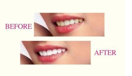 冷光牙齿美白一般要做一个疗程就可以了
