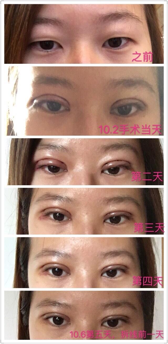 天津惠泽刘院长做的微创双眼皮+去脂案例 前后对比是这样的