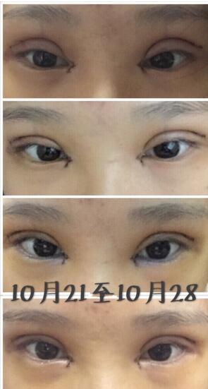 分享长沙申美整形医院全切双眼皮+内眼角案例 整体美美哒