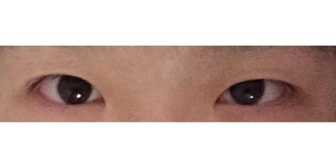 成都大华微创小切口双眼皮+内眼角案例 价格在7000左右