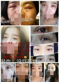 北京八大处张智勇医生做的全切双眼皮+去皮去脂 给大家参考下
