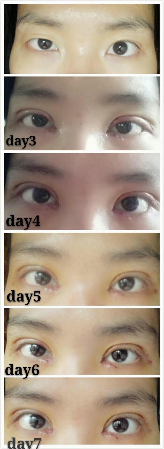 湖南省人民医院李高峰医生做的全切双眼皮+内眼角 手术价格8000多