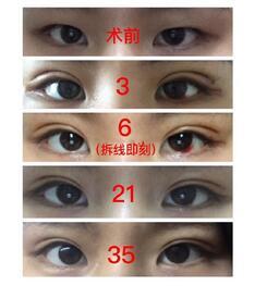 分享上海九院全切双眼皮、去皮真实案例 周一雄医生技术不错