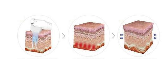 激光祛疤痕有什么优势特征?