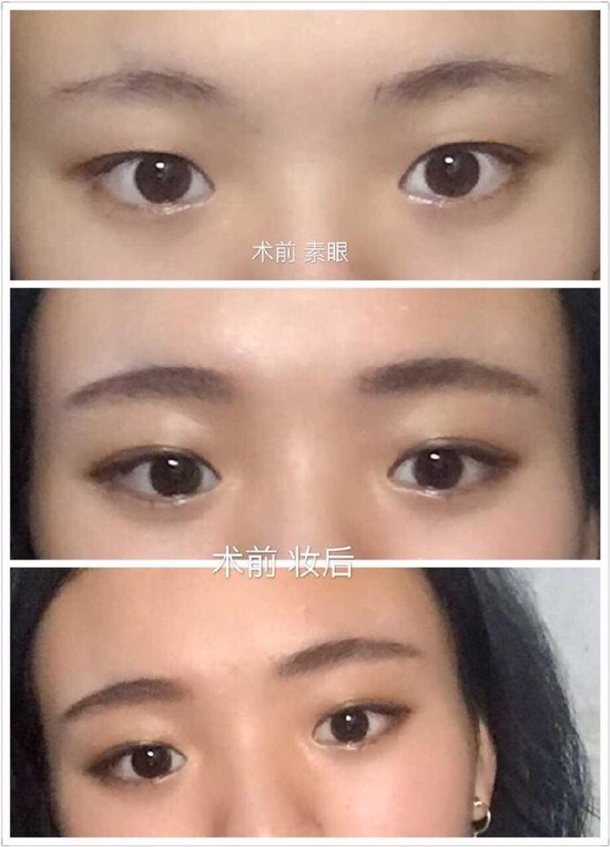 成都景华江涛医生做的全切双眼皮+内眼角 三个月了 给大家看看吧