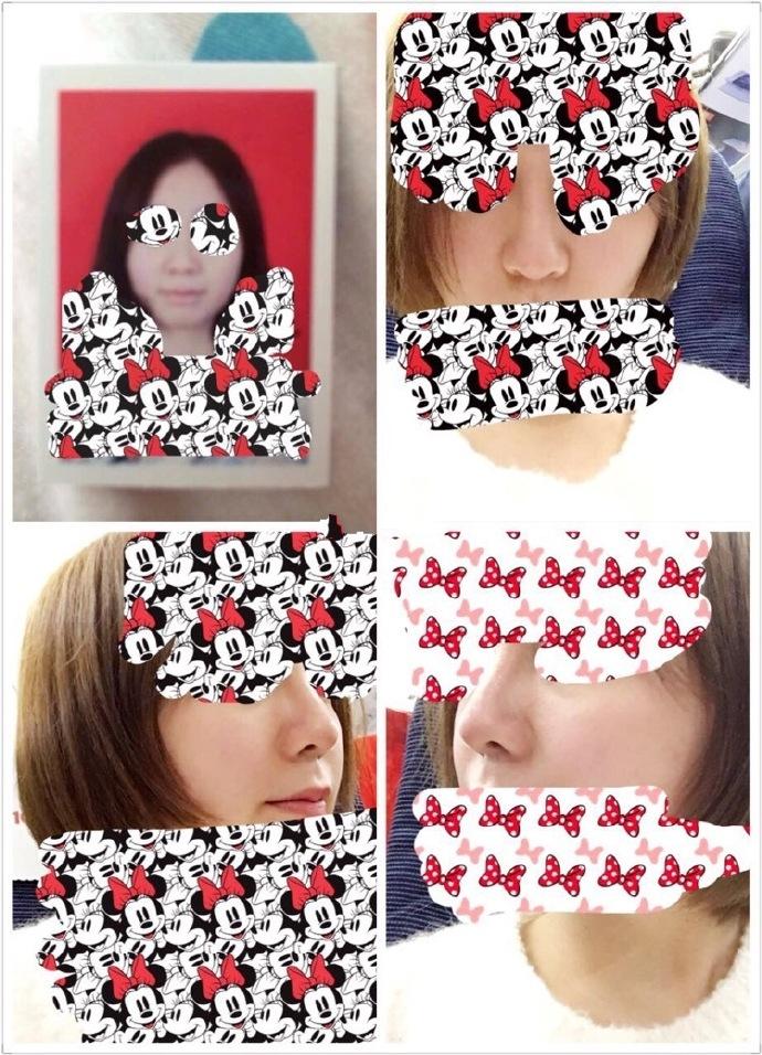 北京八大处金骥医生做的耳软骨隆鼻 手术1万7