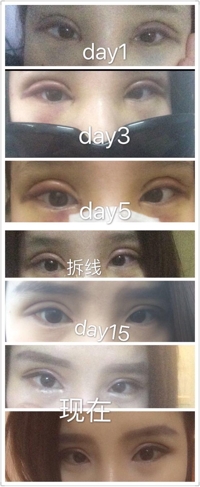 武汉禾丽刘院长做的全切双眼皮+内眼角 来看看怎么样