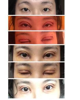 成都西婵眼部综合术真实案例分享 王勇丁医生技术杠杠的