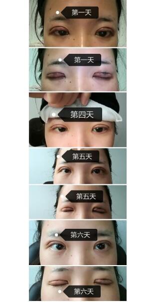 分享浙江大学附属第一医院全切双眼皮+去脂案例 范希玲技术好