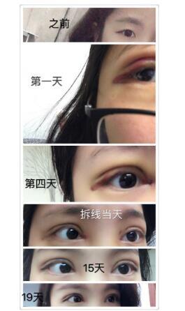 分享上海九院全切双眼皮+内眼角真实案例 戴传昌医生技术口碑好