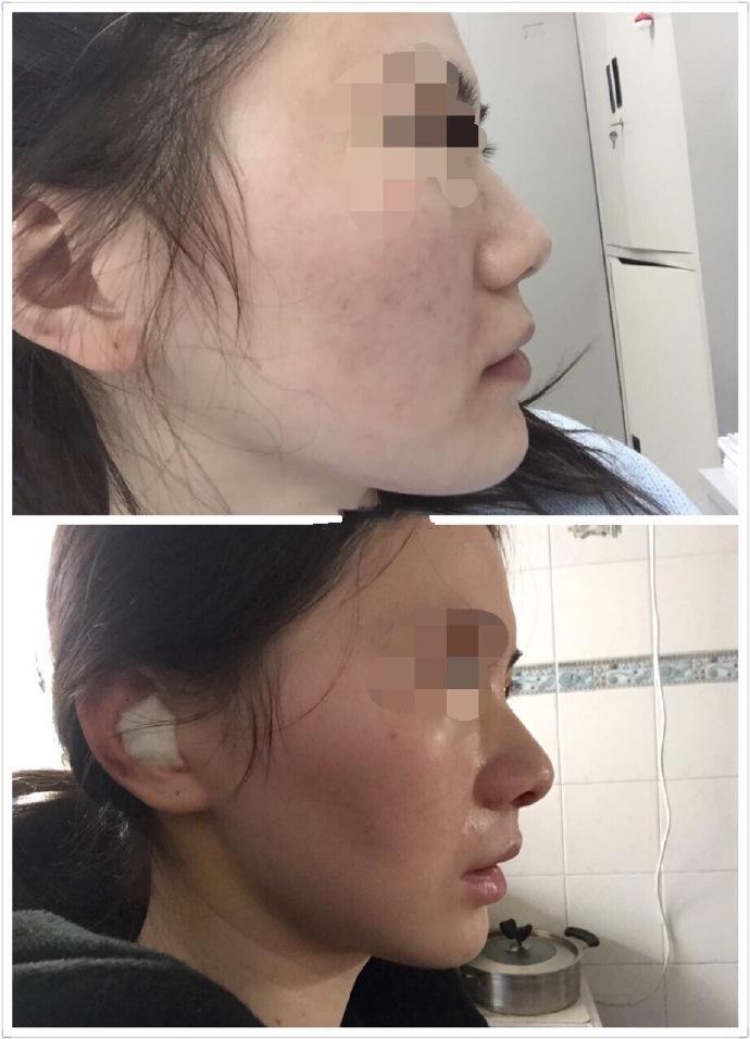 南京康美房志强医生做的鼻综合 花了2万元