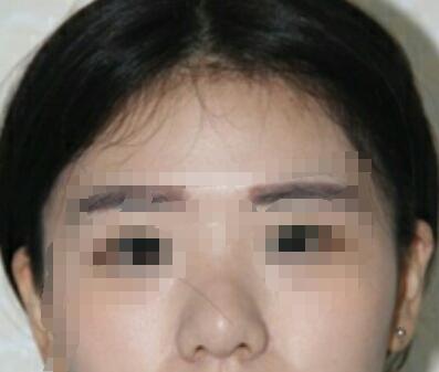 北京沃尔刘彦军医生做的鼻综合 我花了38650元 姐妹们来看看下吧